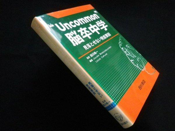 """画像1: """"Uncommon""""脳卒中学 見落とせない発症要因 田川皓一 監訳 (1)"""